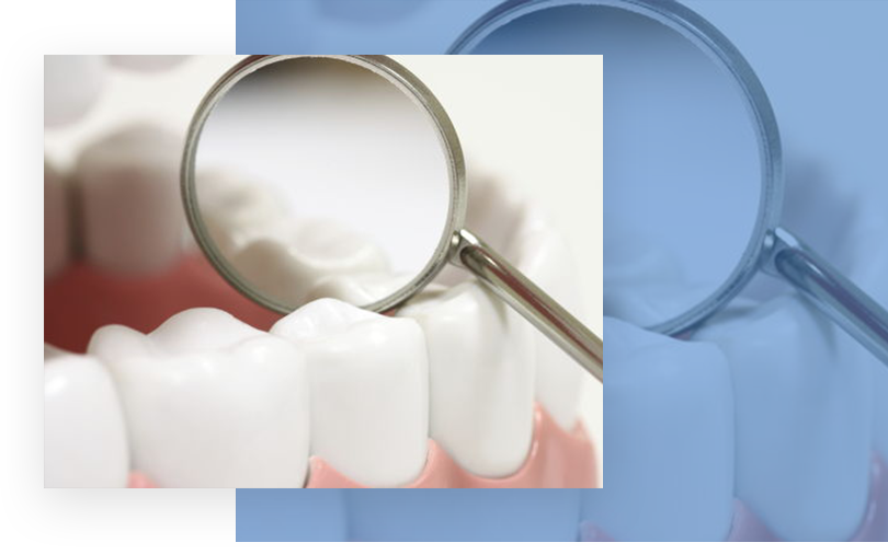 dental sealants north austin