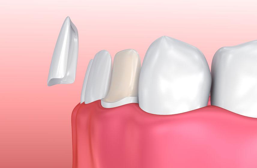 dental veneers round rock texas