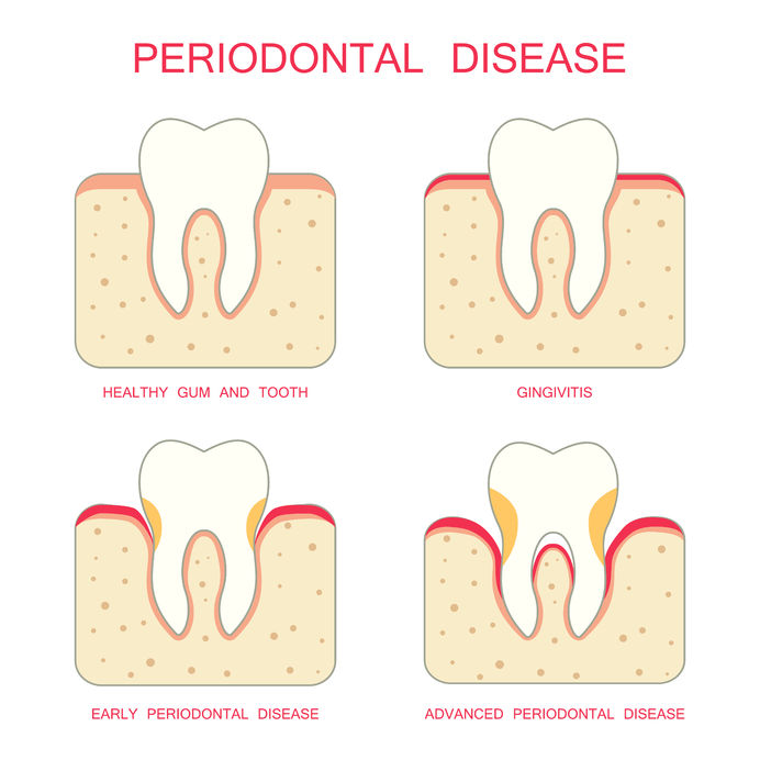 Periodontal Disease | Rock Ridge Dental