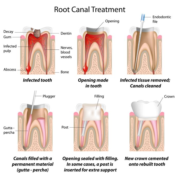 Root Canal Therapy in Round Rock TX